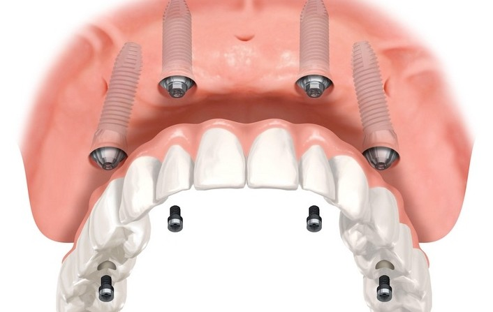 all-on-4 dental implants laguna hills